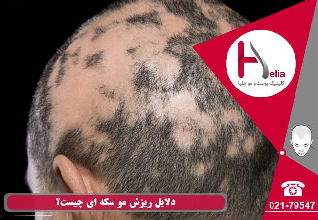 دلایل ریزش موی سر و ریش سکهای