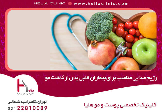 Suitable diet for heart patients after hair transplantation