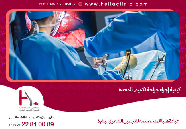 كيفية إجراء جراحة تكميم المعدة