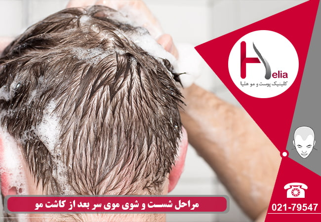 Steps of washing hair after hair transplantation