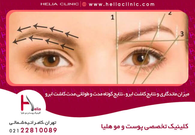 Durability and results of eyebrow implants, short-term and long-term results of eyebrow implants