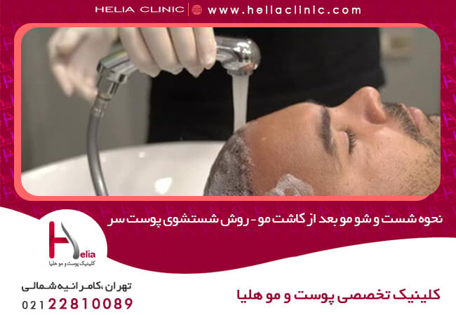 How to wash your hair after hair transplantation - How to wash your scalp
